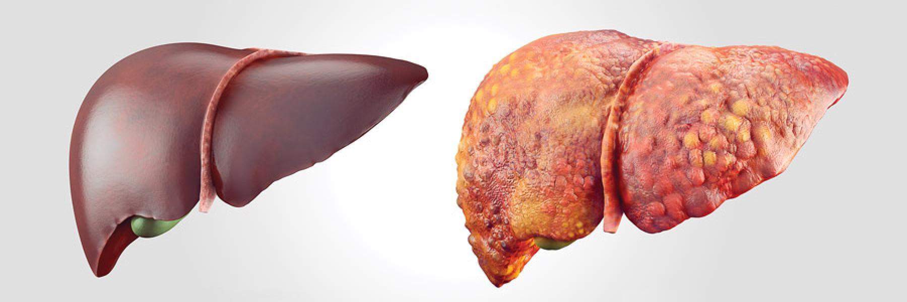 Type of Liver Hepatitis, Acute Hepatitis, Chronic Hepatitis   Dr. Naimish  Mehta